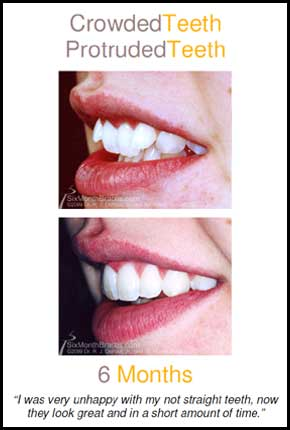 Crowded teeth to straight teeth before and after pictures Louisville KY