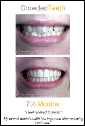 Crowded teeth before and after pictures Louisville KY