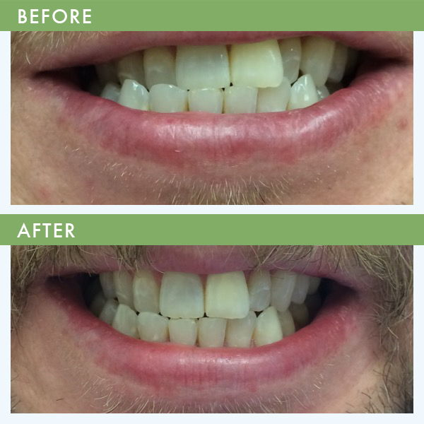 Inman Aligner teeth Straightening Louisville KY