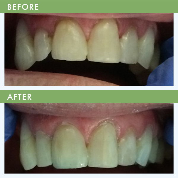 Front Tooth Bonding Cosmetic Dentistry Louisville KY