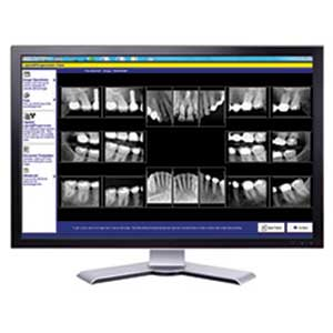 Digital X-rays Emergency Dentistry Louisville KY